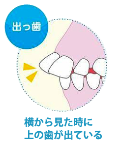 出っ歯 横から見た時に上の歯が出ている